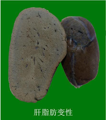 肝脂肪变性