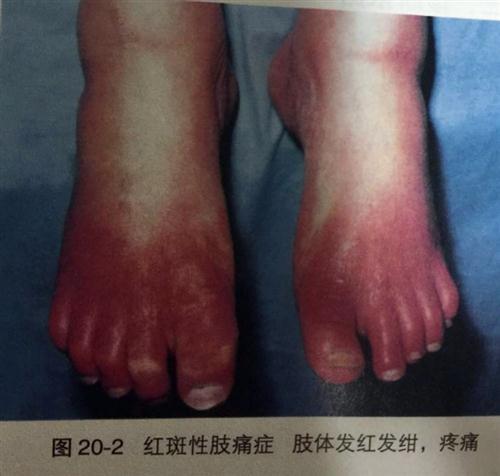红斑性肢端疼痛症